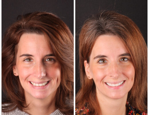 smile transformation austin artistic dental