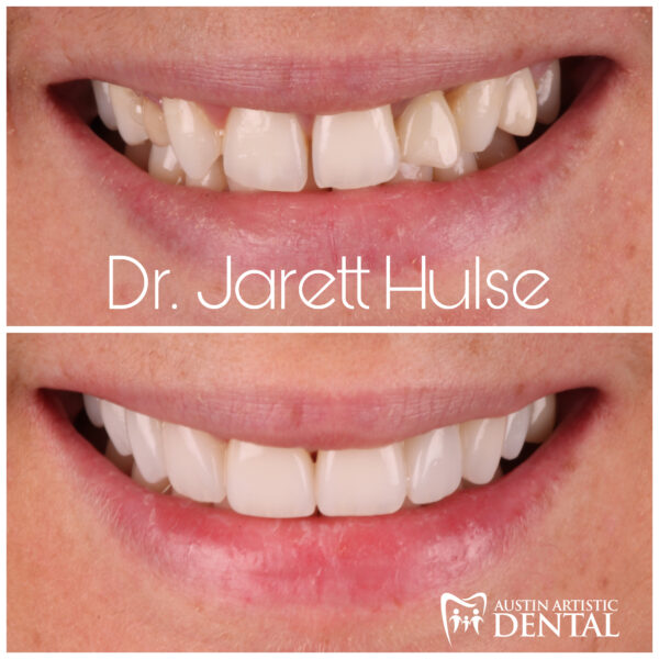 austin cosmetic dentist smile makeover dr jarett hulse